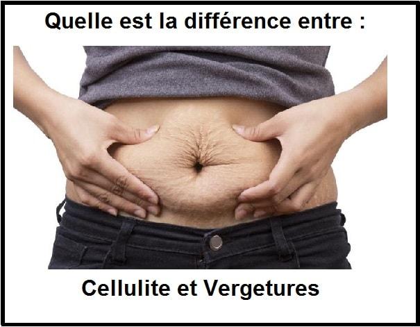 Quelle est la différence entre cellulite et vergetures ?